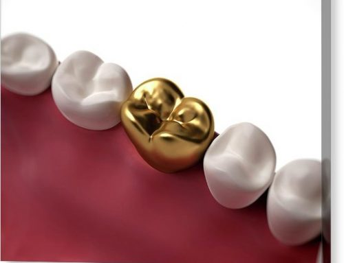 When Is Gold Used in Dentistry?