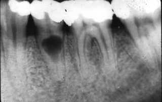 X Rays Teeth Dentistry