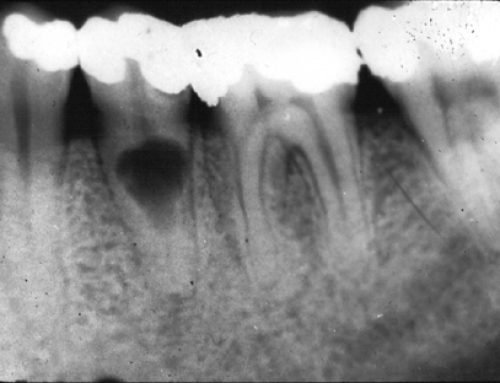 Why Are Dental X-Rays Necessary?