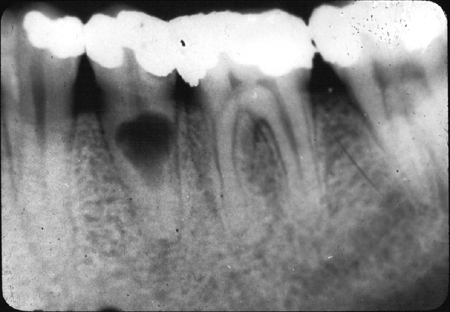 X Rays Teeth Dentistry