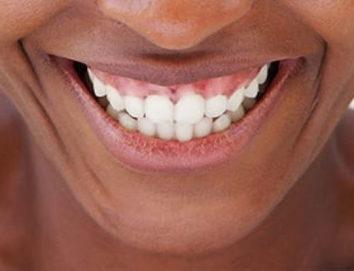 Can an Uneven Gum Line Be Corrected?