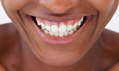 gum line