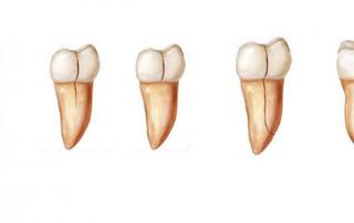 root teeth