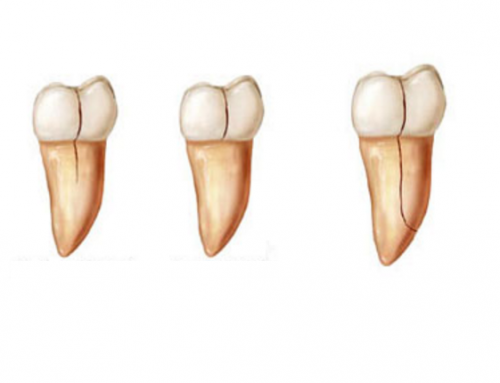 What Is a Dental Root Fracture and How Do You Treat It?