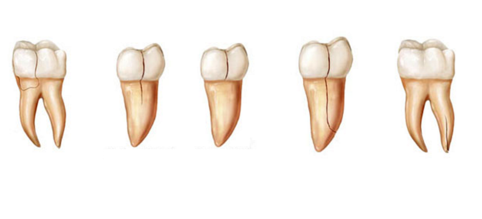root teeth